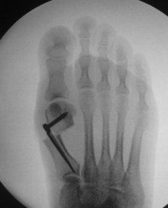 subkapitale Osteotomie, Halcor-Platte