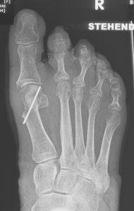 Chevron Osteotomie